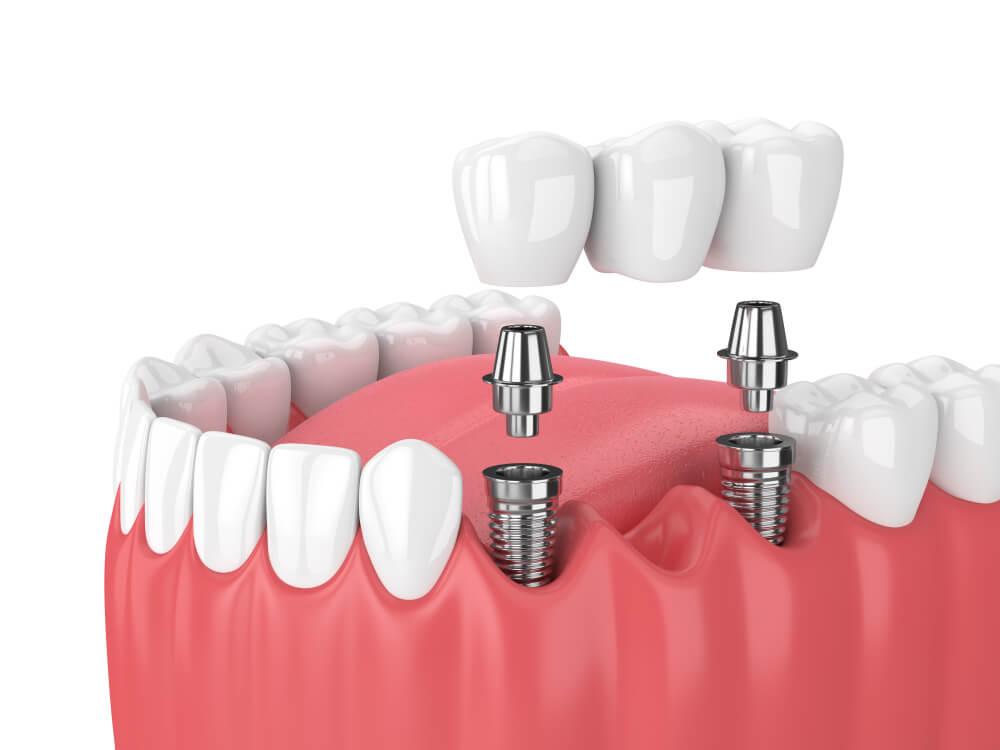 implantologija bodent