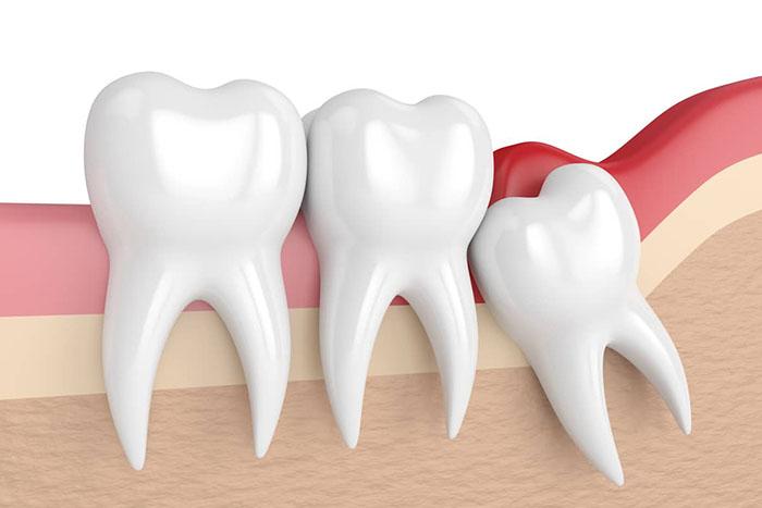oralna hirurgija umnjak BoDent stomatolog