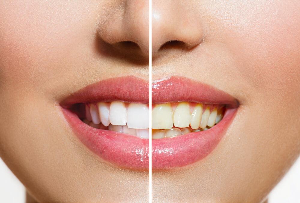pre i posle izbeljivanje zuba