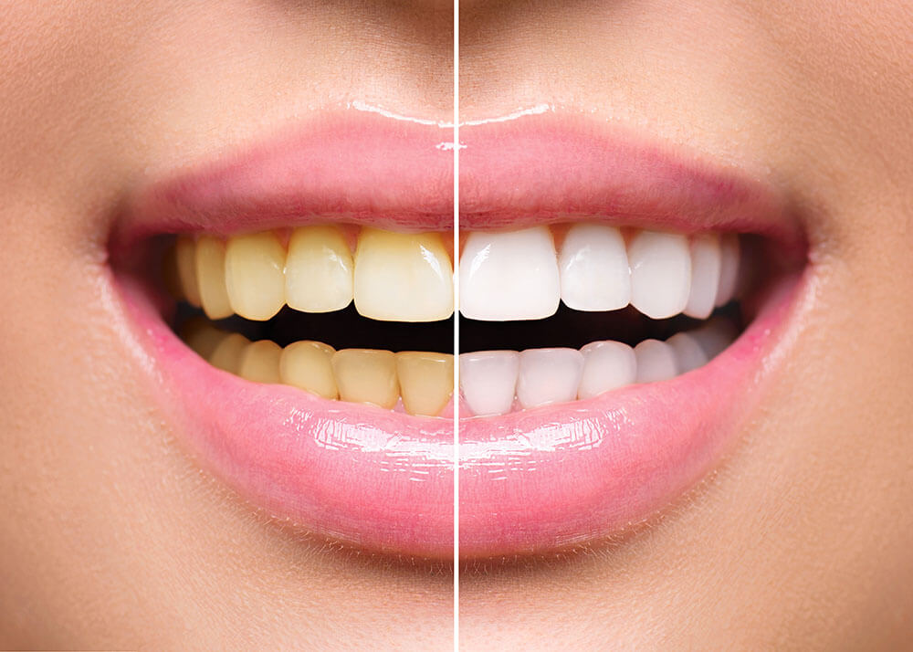 Zašto zubi tamne