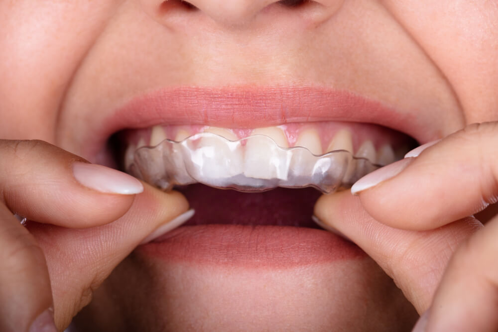 najčešće-bolesti-zuba-bodent-2