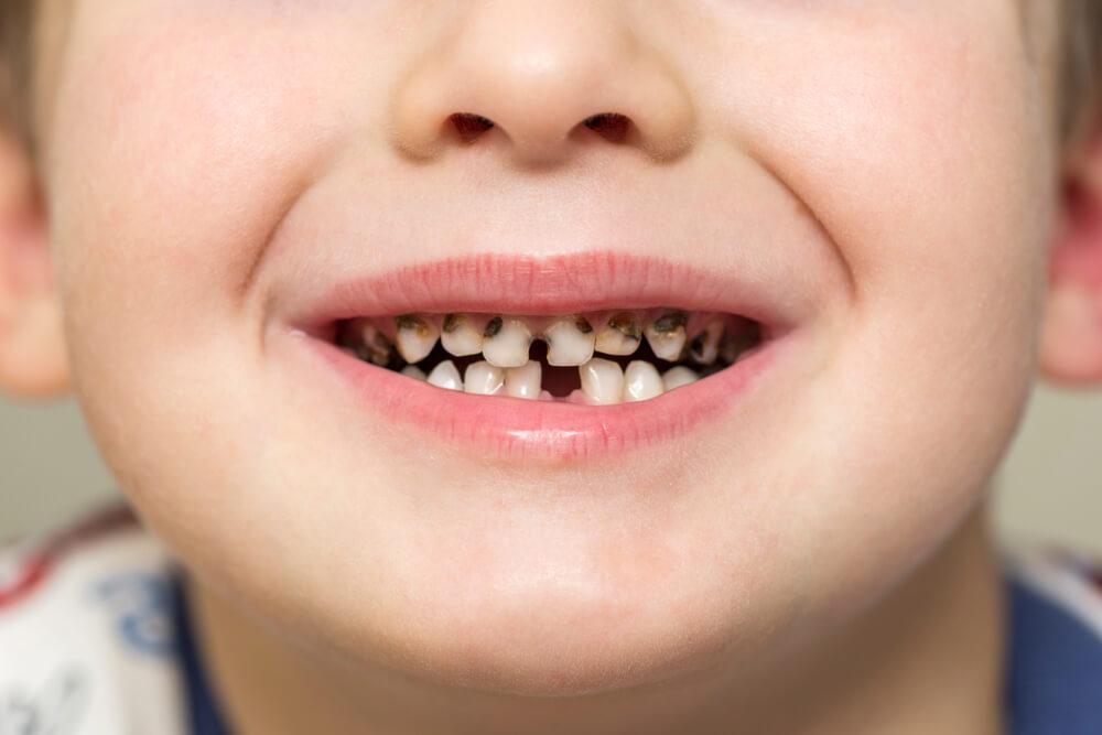 pravilno pranje zuba kod dece bodent 4