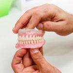 totalne proteze stomatološka ordinacija BoDent 1