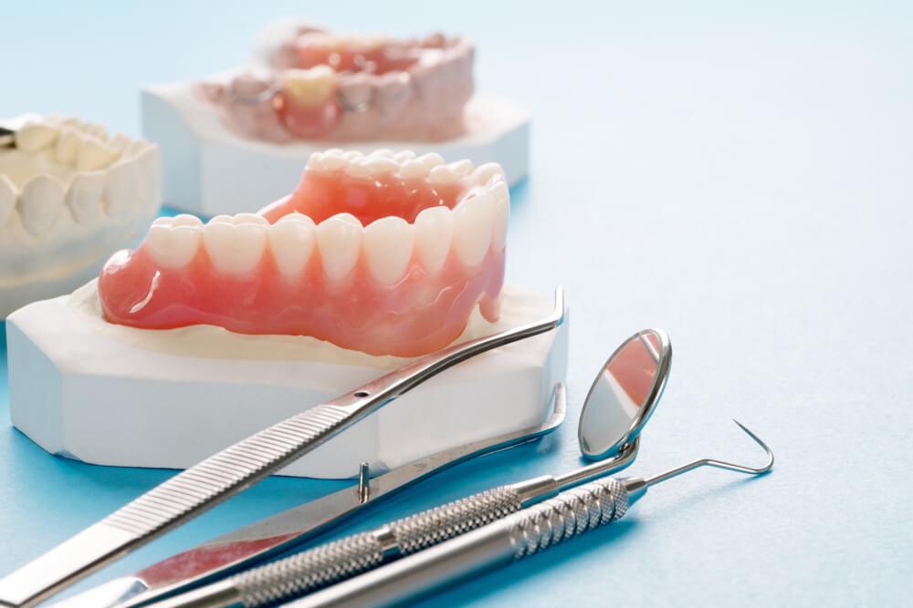 totalne proteze stomatološka ordinacija BoDent 2