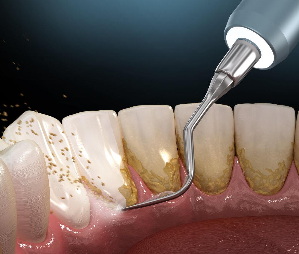 uklanjanje zubnog kamenca Bodent 2