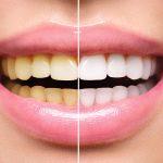 beljenje zuba bodent 2