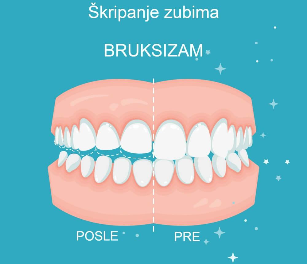 Škripanje zubima