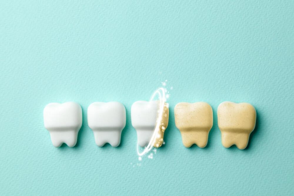 Promena boje zuba