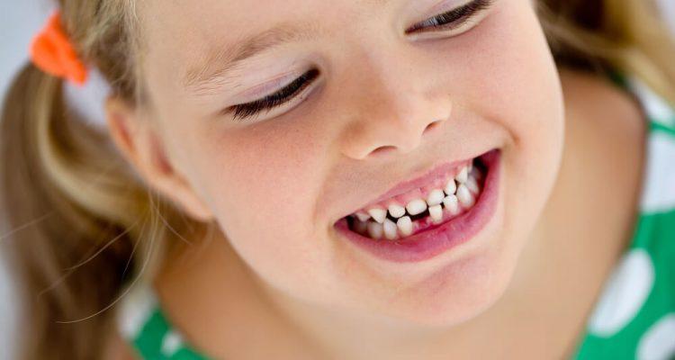Mlečni zubi kod dece