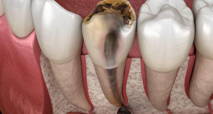 Cista na zubu